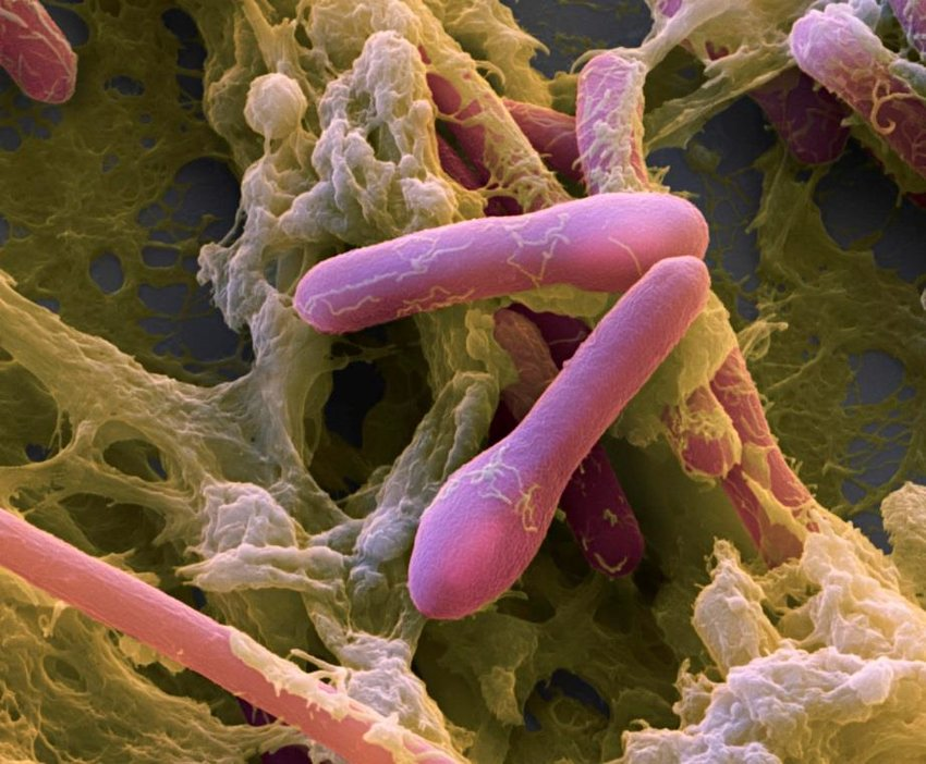 Vi khuẩn Clostridium botulinum gây ngộ độc botulinum